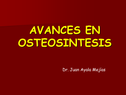 Avances en osteosíntesis - Trauma