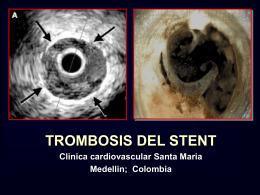 Trombo: El enemigo en SCA, AMI y PCI