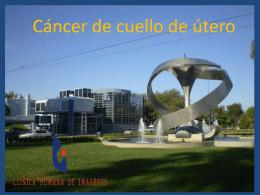 Cancer de cuello de utero