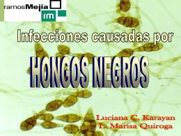 Hongos Negros