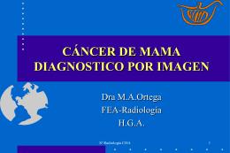 Cancer de mama: Diagnóstico por imagen.
