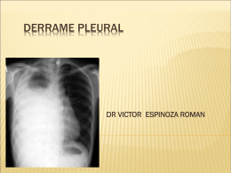 DERRAME PLEURAL - infectologia pediatrica