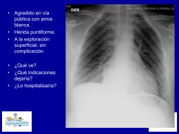 Casos e imágenes de hemotorax - Bienvenidos a Mi cirujano Infantil