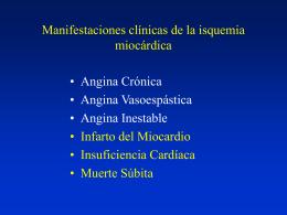 Consecuencias de la isquemia miocárdica