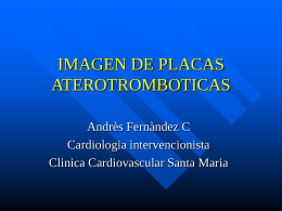 IMAGEN DE PLACAS ATEROTROMBOTICAS