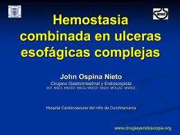 Hemostasia Ulceras Esofagicas