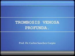 Trombosis venosa profunda (TVP): 1.5 Mb
