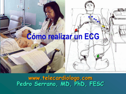 1.3.- Cómo realizar un ECG