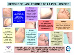 Reconoce las lesiones de la piel