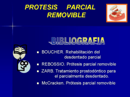 Protesis parcial removible