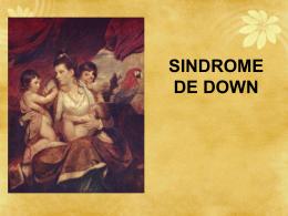 El síndrome de Down (SD) es un síndrome genético causado por