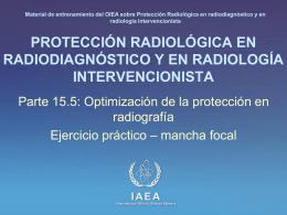 15. Optimización de la protección en radiografía: Parte 5