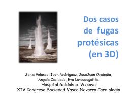 La fuga - Sociedad Vasco Navarra de Cardiología