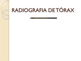 RADIOGRAFIA DO TÓRAX - Sociedade Clemente Ferreira