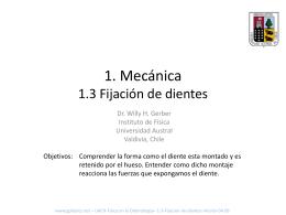 1. Mecánica 1.3 Fijación de dientes