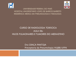 Hilos pulmonares Tumores do mediastino