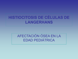 HISTIOCITOSIS DE CÉLULAS DE LANGERHANS