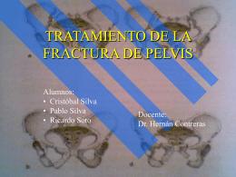 TRATAMIENTO DE LA FRACTURA DE PELVIS
