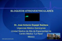 Bloqueos atrioventriculares
