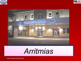Arritmia Cardiacas: Bloqueos de la Conducción Aurícula