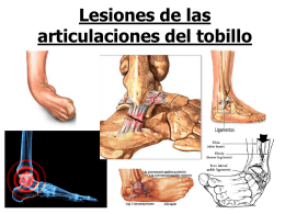 Lesiones de las articulaciones del tobillo