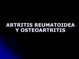 6 artritis reumatoide y osteoartritis