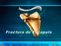 fractura de clavícula y escapula. (parte 2)