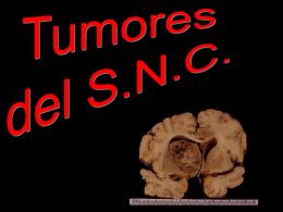 1. TUMORES GLIALES