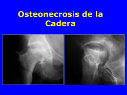 06- Necrosis de la cadera - lerat