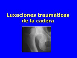 05- Luxaciones de la cadera - lerat
