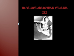 maloclusiones clase iii