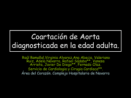 Coartación diagnosticada en la edad adulta.