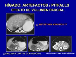 Figura 8. Artefactos / Pitfalls relacionados con el hígado.