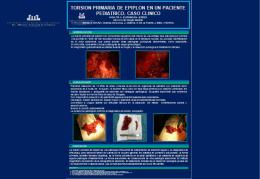 Divertículo Epifrénico: Presentación patología poco frecuente
