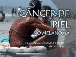 CÁNCER DE PIEL- No Melanoma