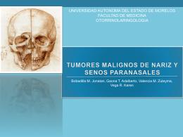 Tumores Malignos de Nariz