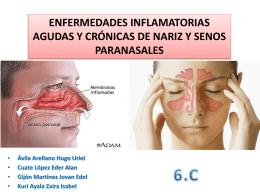 Enfermedades inflamatorias agudas y crónicas de nariz y SPN