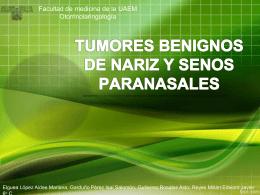 Tumores benignos de naríz y senos paranasales