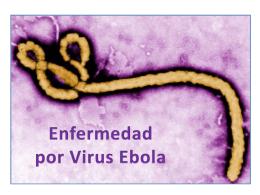 Enfermedad por virus Ebola
