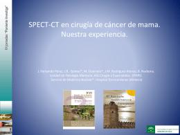 SPECT-CT en cirugía de cáncer de mama. Nuestra experiencia.