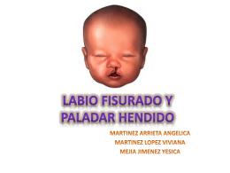 LABIO FISURADO Y PALADAR HENDIDO