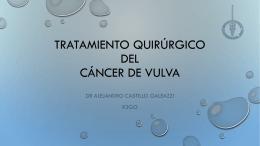 Tratamiento quirúrgico del cáncer de vulva