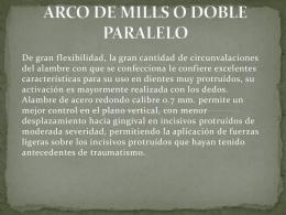 ARCO DE MILLS O DOBLE PARALELO