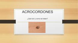 ACROCORDONES ¿Qué son y como se tratan?