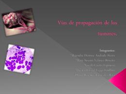Vías de propagación de los tumores.