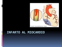 Infarto al miocardio - MOP-UNAB