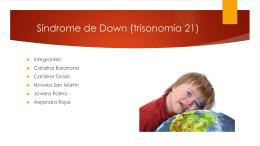 Síndrome de Down (trisonomía 21)