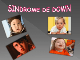 sindrome de down