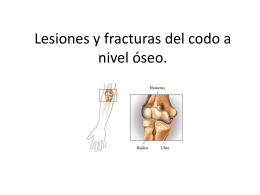 Lesiones y fracturas del codo a nivel óseo