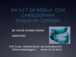 rm 3.0t de rodilla con cartilograma
